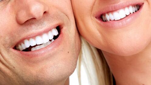 Luce sonrisa luminosa. Limpieza dental y radiografía