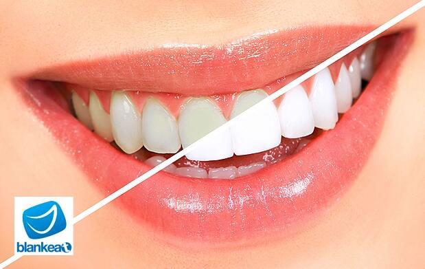 Blanqueamiento dental perfecto a solo 55€