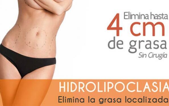 Lipo sin cirugía: hidrolipoclasia ultrasónica