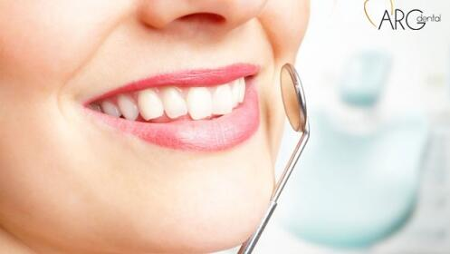 Limpieza dental con ultrasonidos