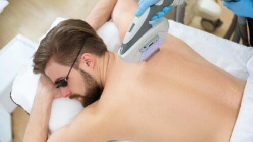 1, 4 o 7 sesiones de depilación láser unisex SHR en zona a elegir desde 9,95 € en Monblan